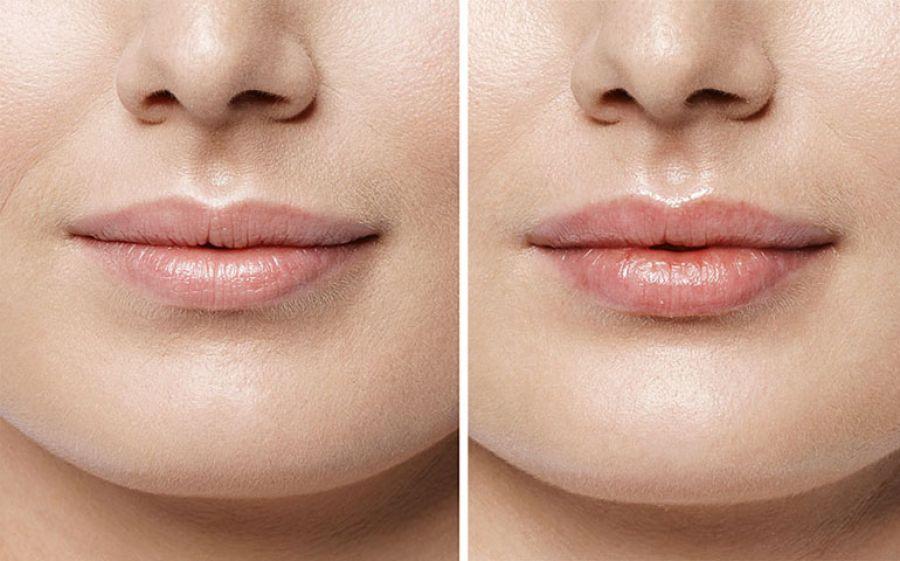 Filler labbra, il trattamento con effetto naturale.
